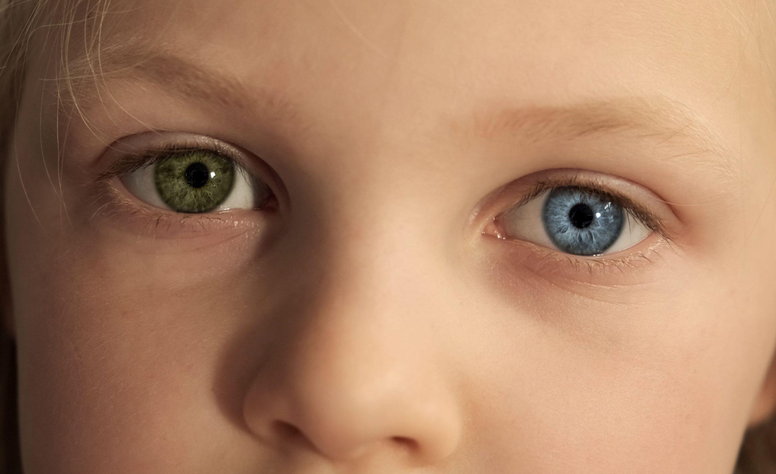 child-with-heterochromia